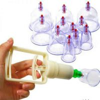cupping therapy sp