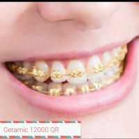 Dental Brace Specialists are here