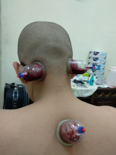 Cupping Therepy For All Purpose