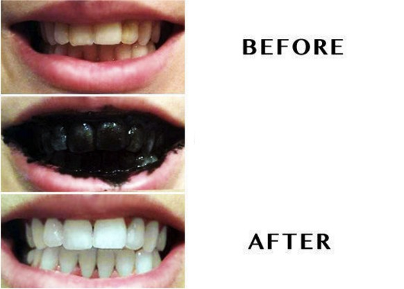 Teeth Whitening activated Carbon