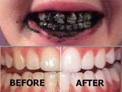 Best way for Teeth whitening